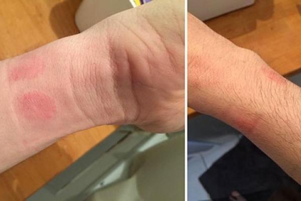 -Пользователи Apple Watch жалуются на раздражение кожи и аллергические реакции
