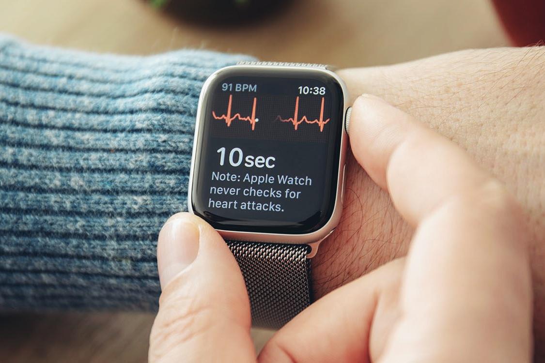 Apple-Watch-ECG12